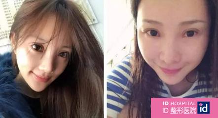 韩国整形医生解析:欧式大平行双眼皮究竟适不适合你?